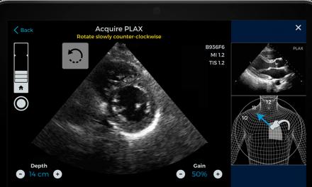 İlk Yapay Zeka Destekli Ultrason FDA Onayı Aldı